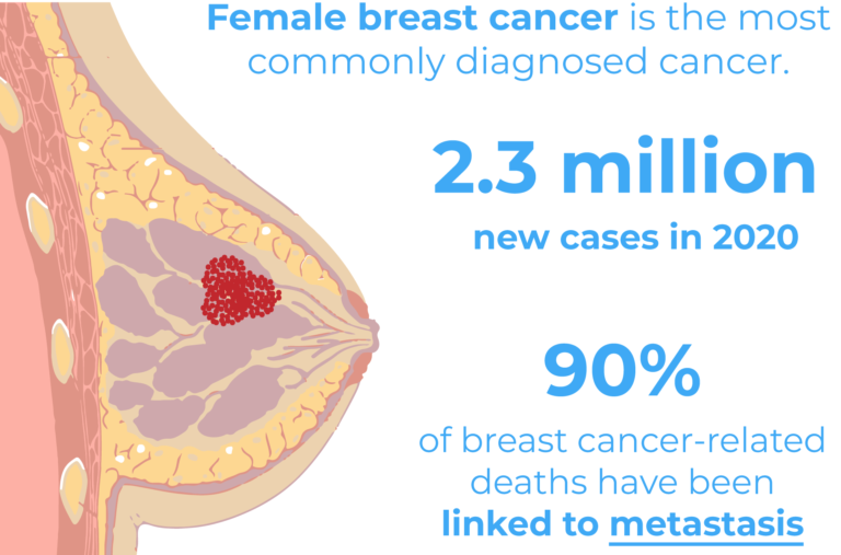 Female breast cancer is the most commonly diagnosed cancer, with 2.3 million new cases in 2020. 90% of breast cancer deaths are linked to metastasis