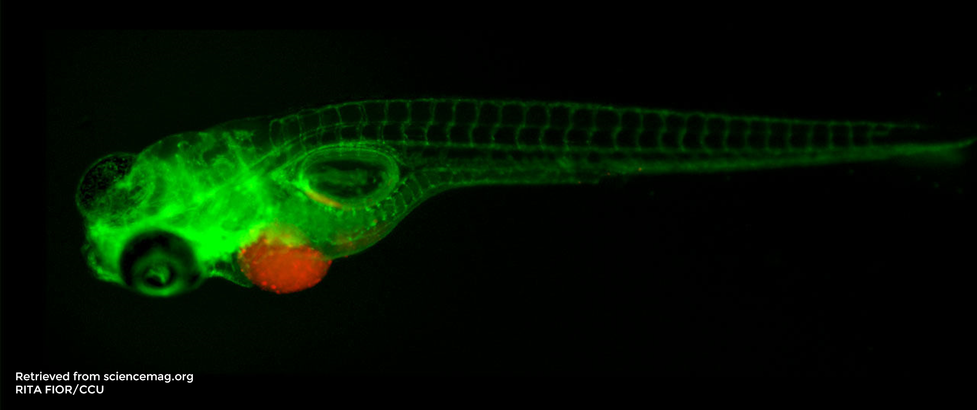 Studying breast cancer with zebrafish: a case study