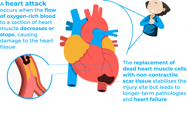 Heart attack infographic: a heart attack occurs when the flow of oxygen-rich blood to a selection of heart decreases or stops causing damage to the heart tissue