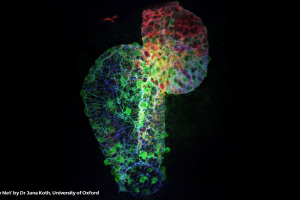 zebrafish heart-featured image